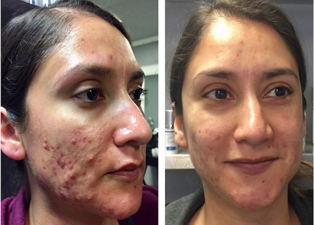 Professional Skincare Acne Face Off Finalist Before After