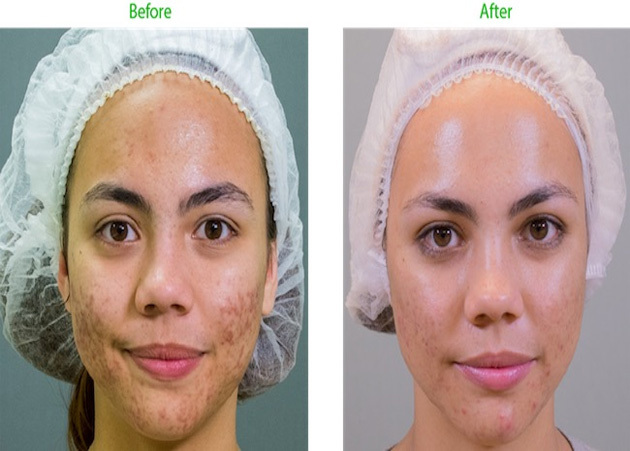 Professional Skincare Acne Before After 90 Day Rhonda Allison